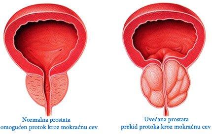 uvecana_prostata